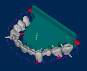 Sintering Stabilizer 171 Sum3d Dental